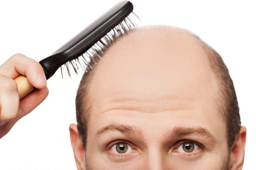 La calvizie causata da stress può essere facilmente trattata con l'aiuto di un trapianto di capelli.
